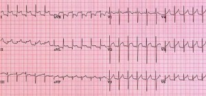 ECG com pericardite aguda