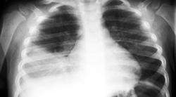 pneumonia em crianças