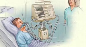 Ventilação mecânica invasiva e pneumonia associada a VM, sepse e choque séptico