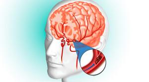 AVC como complicação da fibrilação atrial ou fibrilação auricular