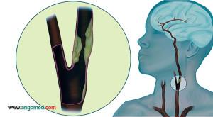Imagem artéria carótida com placa aterosclerótica. Doença das artérias carótidas